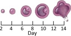 Ovary follicle showing ovulation stages